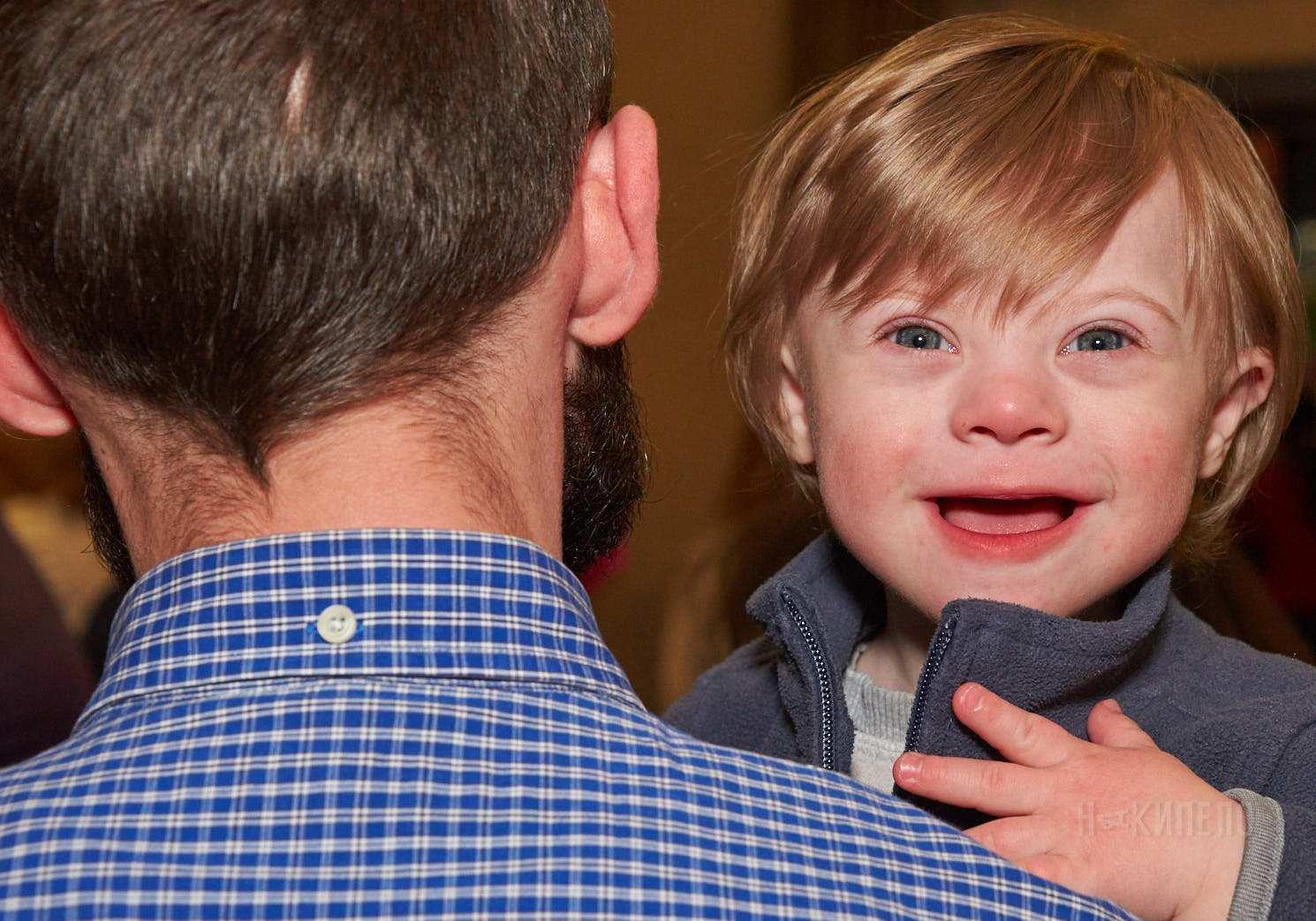 синдром дауна даун солнечные дети инвалид