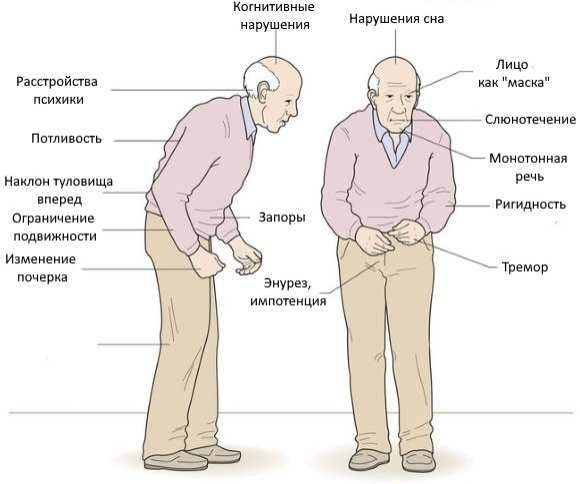 parkinsonizm-i-bolezn-parkinsona-osnovnye-otlichiya